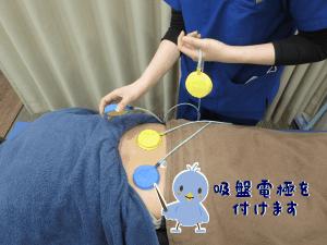 干渉波治療器の電極の取付例