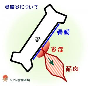 骨膜炎の簡易図