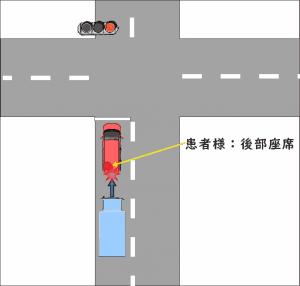 交通事故の事例02