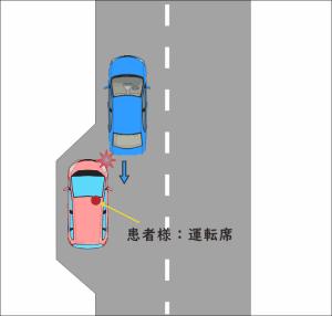 道路の路肩に停車中、バックしてきた車と接触してしまった交通事故の図