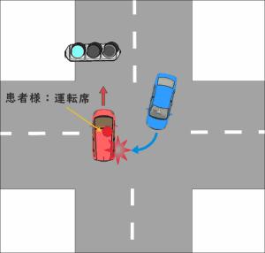 自動車を運転中、交差点内で発生した接触事故の状況を示した図