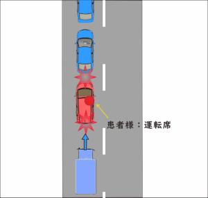渋滞の最後尾で停車中に、後方からトラックに追突され、玉突き事故となった交通事故の図