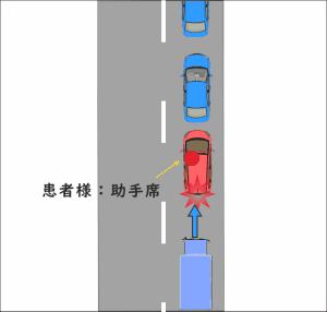 渋滞の最後尾で停車中に、後ろからトラックに追突された交通事故の図
