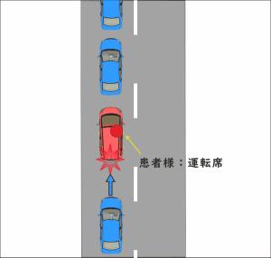 渋滞最後尾で停車中、後方から追突された交通事故の図