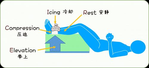 ケガの応急処置の方法