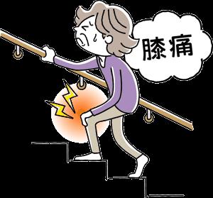 ひざの痛みで、階段の上りに苦痛を感じる高齢女性